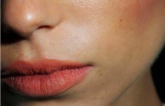 Au secours j'ai une poussée d'acné! – Caroline Receveur