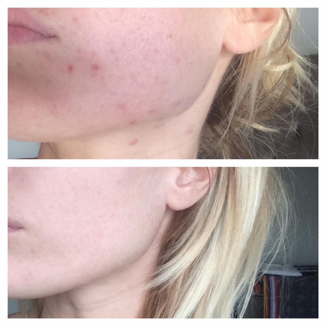 #Wandertea Flawless has saved my #Skin | Caroline Receveur